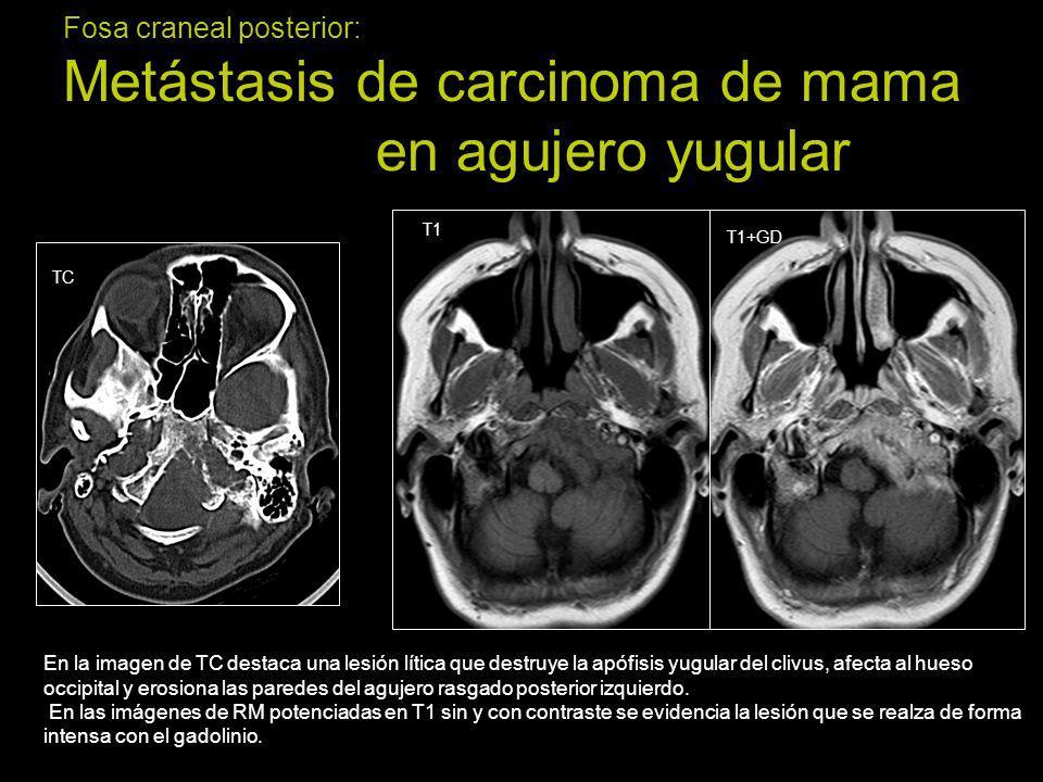 Fosa craneal posterior: Glomus yugular o paraganglioma En las imágenes de TC se evidencia una lesión lítica que erosiona las paredes del agujero rasgado posterior dejando unos límites bien definidos (*).