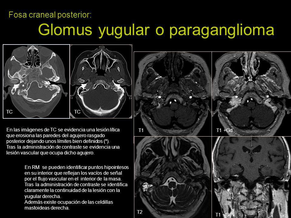 Fosa craneal posterior: Glomus yugular o paraganglioma En las imágenes de TC se evidencia una lesión lítica que erosiona las paredes del agujero rasga