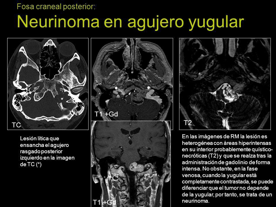 Fosa craneal posterior: Neurinoma en agujero yugular Lesión lítica que ensancha el agujero rasgado posterior izquierdo en la imagen de TC (*) En las i