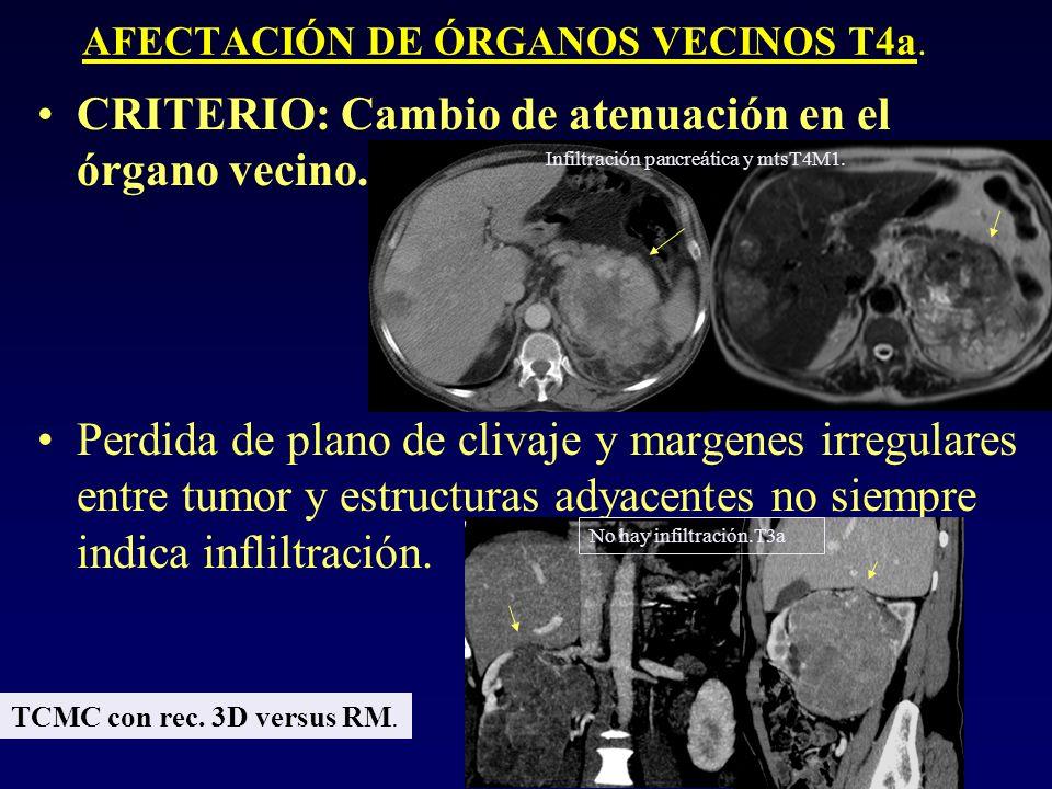 AFECTACIÓN DE ÓRGANOS VECINOS T4a. CRITERIO: Cambio de atenuación en el órgano vecino. Perdida de plano de clivaje y margenes irregulares entre tumor