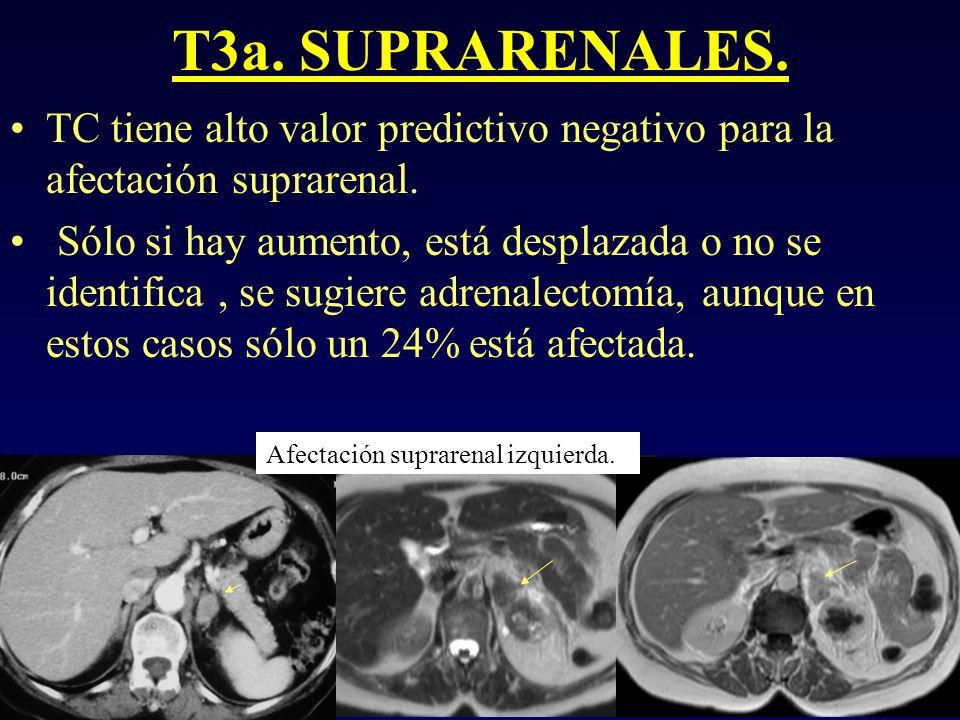 T3a. SUPRARENALES. TC tiene alto valor predictivo negativo para la afectación suprarenal. Sólo si hay aumento, está desplazada o no se identifica, se