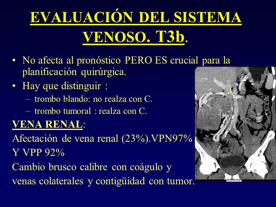 EVALUACIÓN DEL SISTEMA VENOSO. T3b. No afecta al pronóstico PERO ES crucial para la planificación quirúrgica. Hay que distinguir : –trombo blando: no