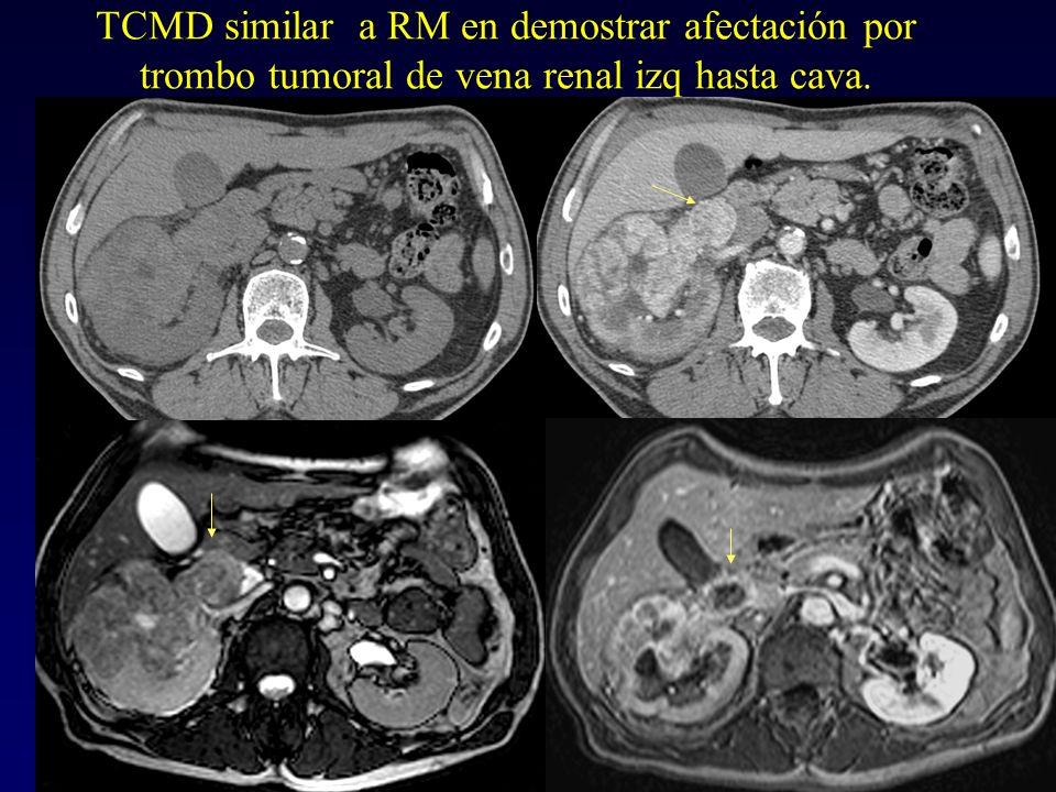 TCMD similar a RM en demostrar afectación por trombo tumoral de vena renal izq hasta cava.