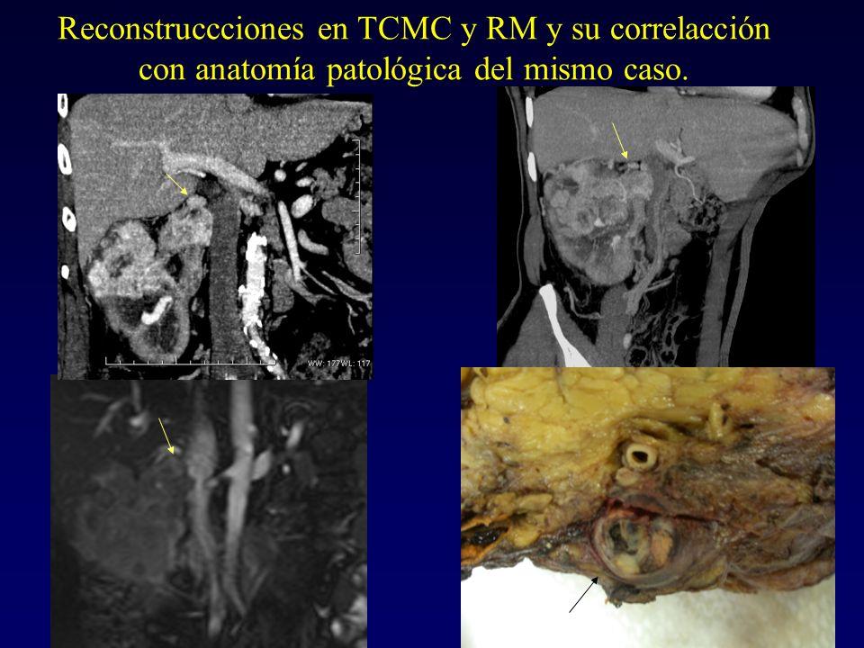 AFECTACIÓN DE LA V.C.I.(4-10%). IMPORTANTE determinar la EXTENSIÓN CRANEAL DEL TROMBO.