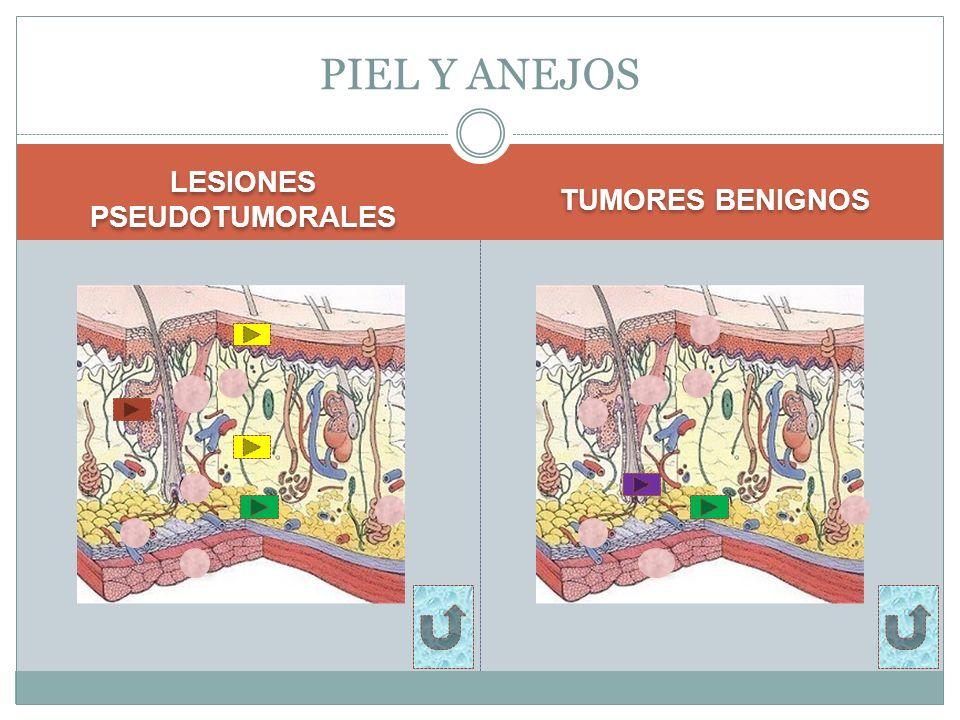 LESIONES PSEUDOTUMORALES TUMORES BENIGNOS PIEL Y ANEJOS