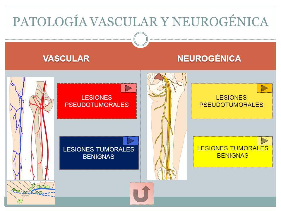 Glomus ungueal como bultoma doloroso en el lecho ungueal
