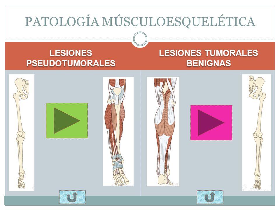 VASCULAR NEUROGÉNICA PATOLOGÍA VASCULAR Y NEUROGÉNICA LESIONES PSEUDOTUMORALES LESIONES TUMORALES BENIGNAS LESIONES PSEUDOTUMORALES LESIONES TUMORALES BENIGNAS