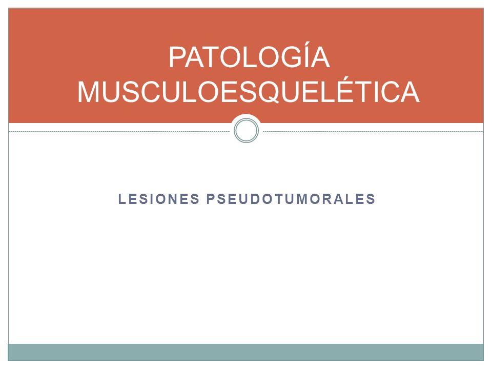 LESIONES PSEUDOTUMORALES LESIONES TUMORALES BENIGNAS PATOLOGÍA MÚSCULOESQUELÉTICA