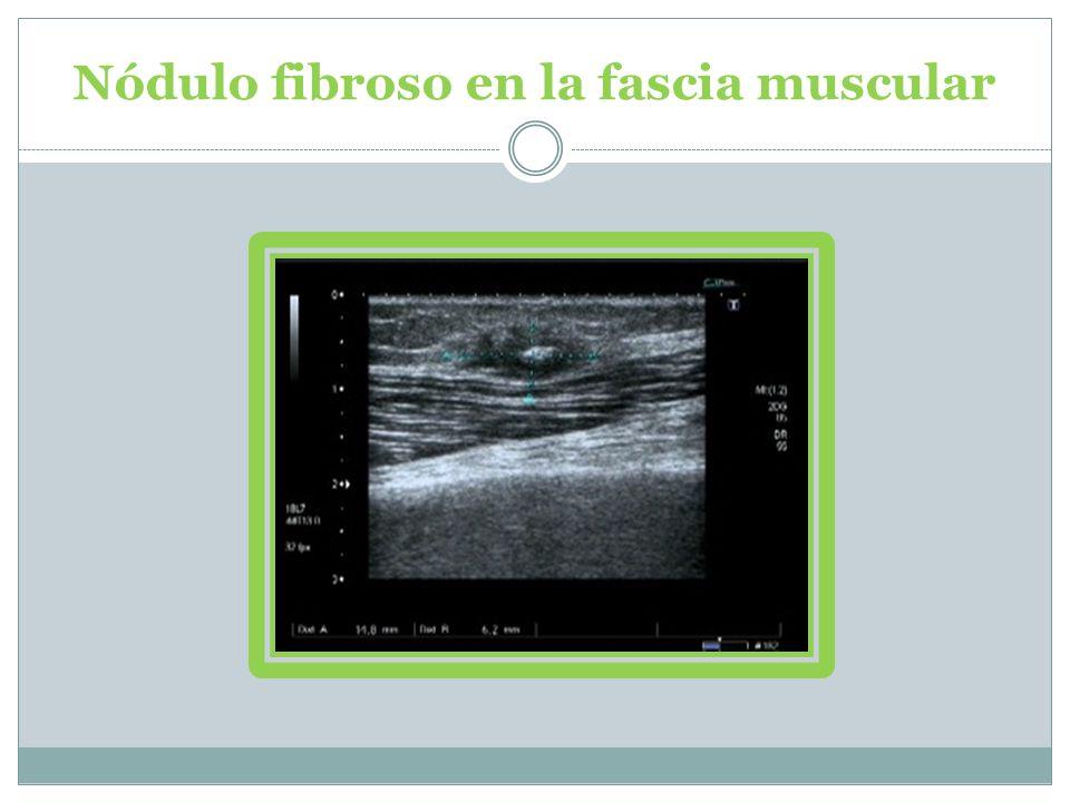 Rotura parcial del bíceps como bultoma doloroso