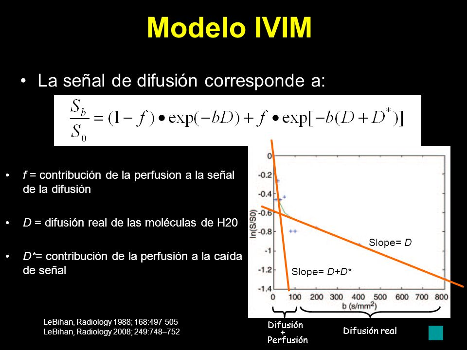 IVIM DWI-ADC MAPS All 5 b values from 0 to 1000 3 b values b 500, 750 and 1000 IVIM-ADC MAPS b values from 0 to 100 b values from 400 to 1000 (perfusion ADC map) (pure diffusion ADC map) ADC value: 1,1 x 10-3 ADC value: 0,5 x 10-3 HCC tras TACE en 3T magnet ADC value: 1,02 x 10-3 ADC value: 0,4 x 10-3