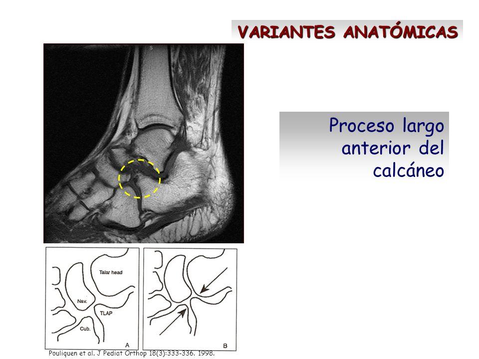 VARIANTES ANATÓMICAS Proceso largo anterior del calcáneo Pouliquen et al. J Pediat Orthop 18(3):333-336. 1998.