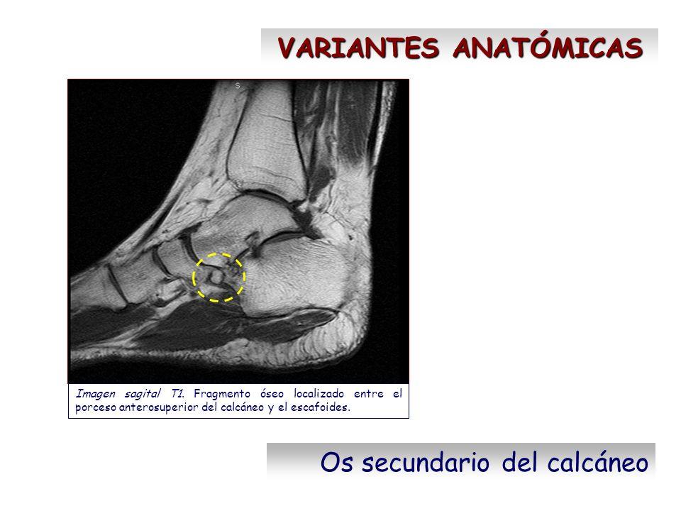 VARIANTES ANATÓMICAS Os secundario del calcáneo Imagen sagital T1. Fragmento óseo localizado entre el porceso anterosuperior del calcáneo y el escafoi
