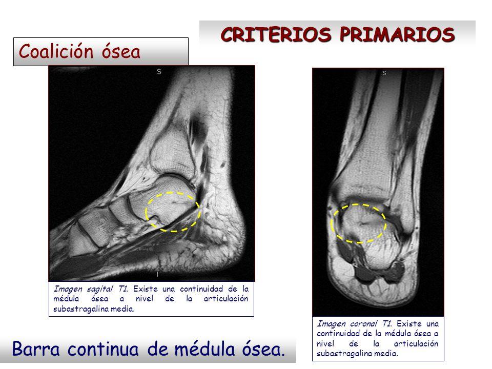CRITERIOS PRIMARIOS Coalición ósea Barra continua de médula ósea. Imagen sagital T1. Existe una continuidad de la médula ósea a nivel de la articulaci