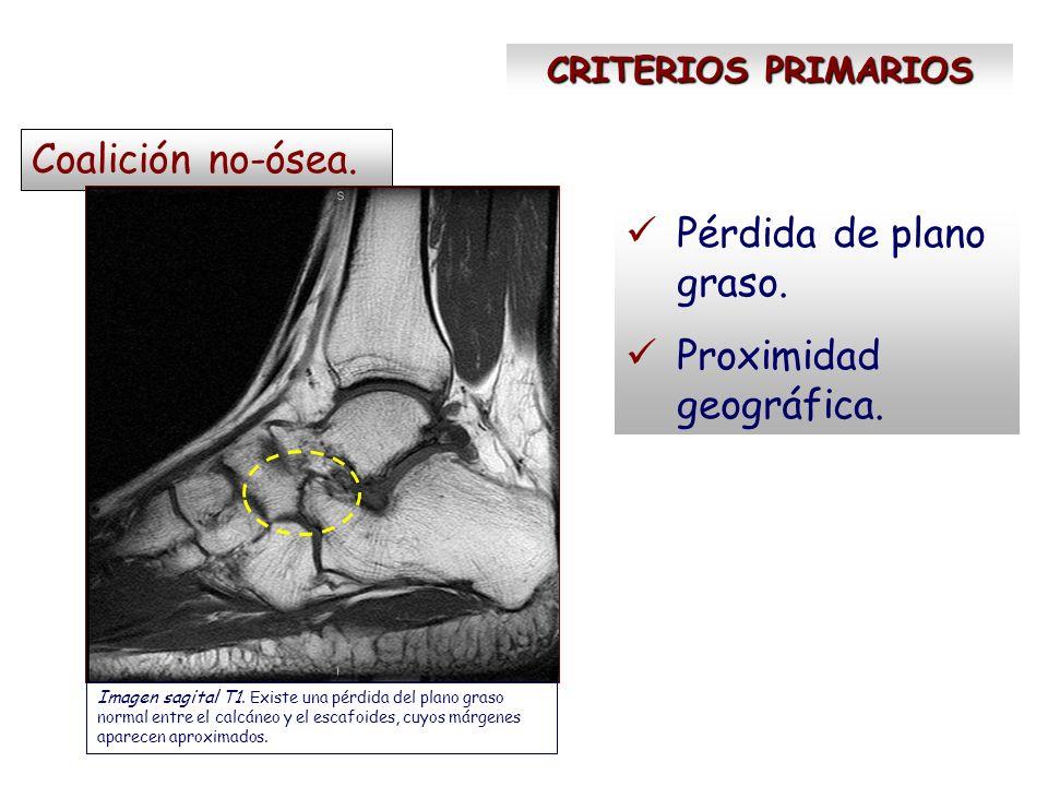 CRITERIOS SECUNDARIOS Signos de inestabilidad Imagen sagital DP/sat-fat.