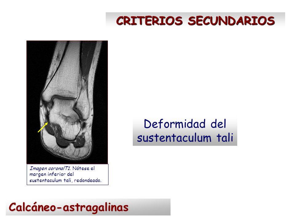 CRITERIOS SECUNDARIOS Pico astragalino Imagen sagital T1.