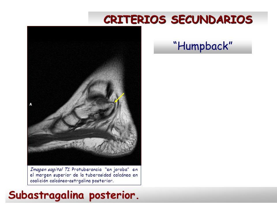 CRITERIOS SECUNDARIOS Humpback Imagen sagital T1. Protuberancia en joroba en el margen superior de la tuberosidad calcánea en coalición calcáneo-astrg