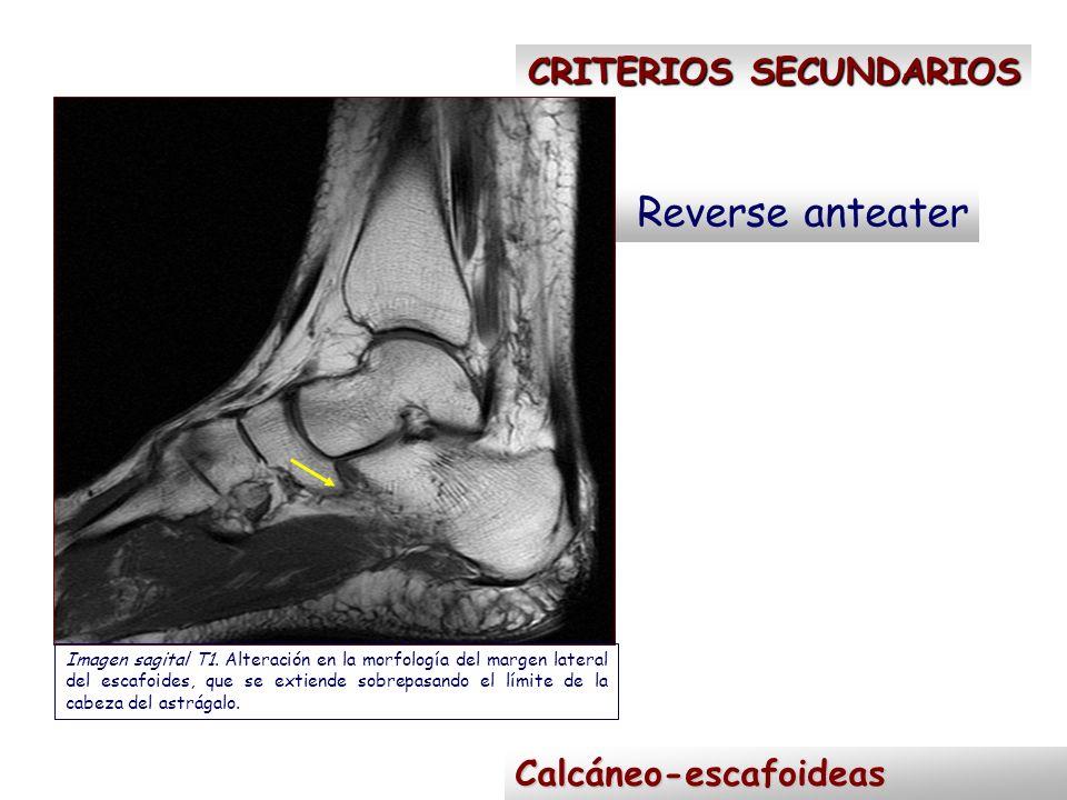 CRITERIOS SECUNDARIOS Reverse anteater Calcáneo-escafoideas Imagen sagital T1. Alteración en la morfología del margen lateral del escafoides, que se e