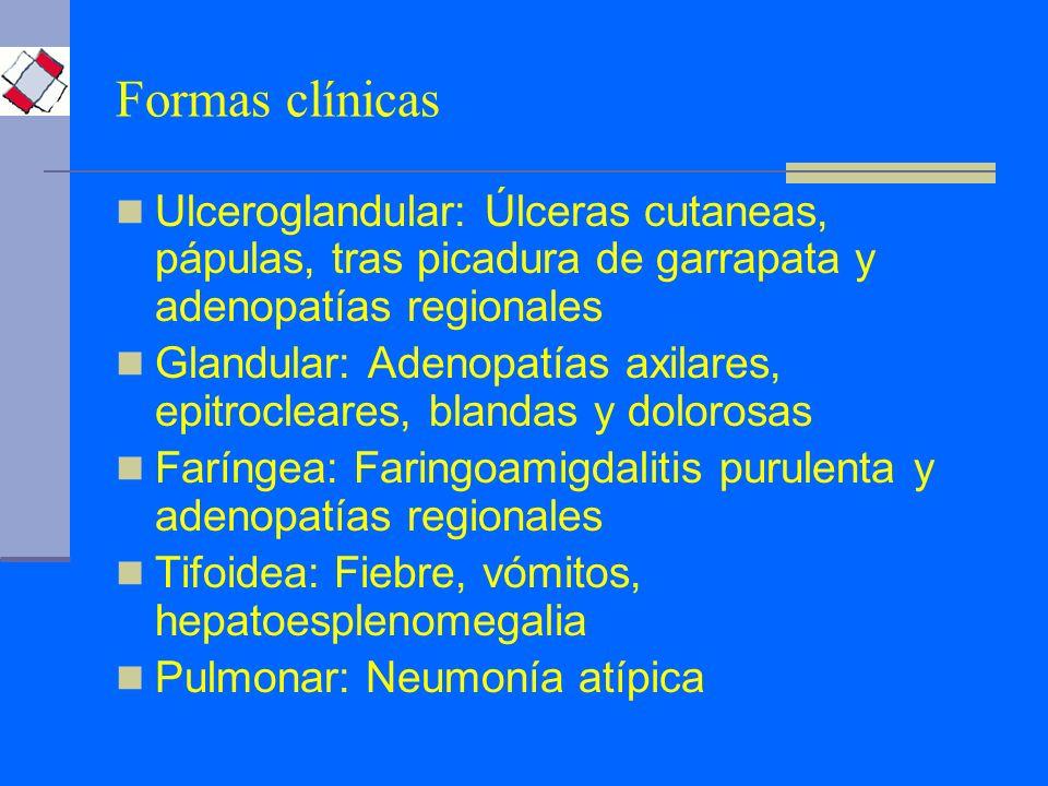 Ulceroglandular: Úlceras cutaneas, pápulas, tras picadura de garrapata y adenopatías regionales Glandular: Adenopatías axilares, epitrocleares, blanda