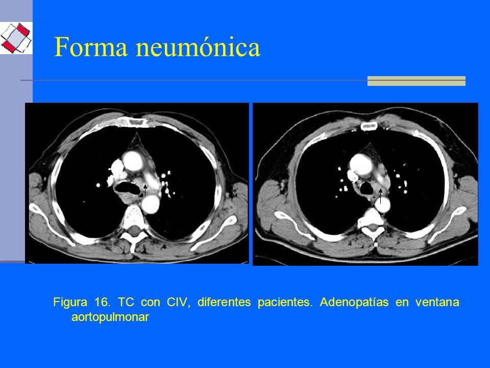 Forma neumónica Figura 16. TC con CIV, diferentes pacientes. Adenopatías en ventana aortopulmonar