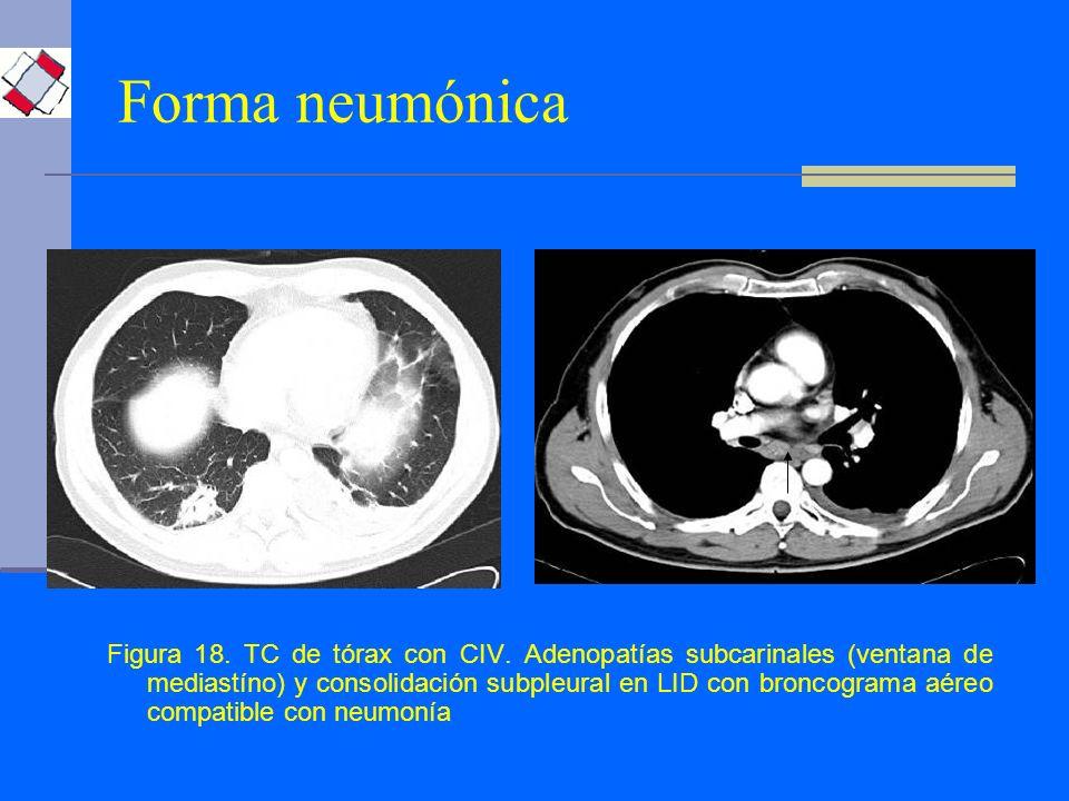 Forma neumónica Figura 18. TC de tórax con CIV. Adenopatías subcarinales (ventana de mediastíno) y consolidación subpleural en LID con broncograma aér