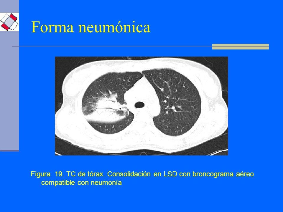 Forma neumónica Figura 19. TC de tórax. Consolidación en LSD con broncograma aéreo compatible con neumonía
