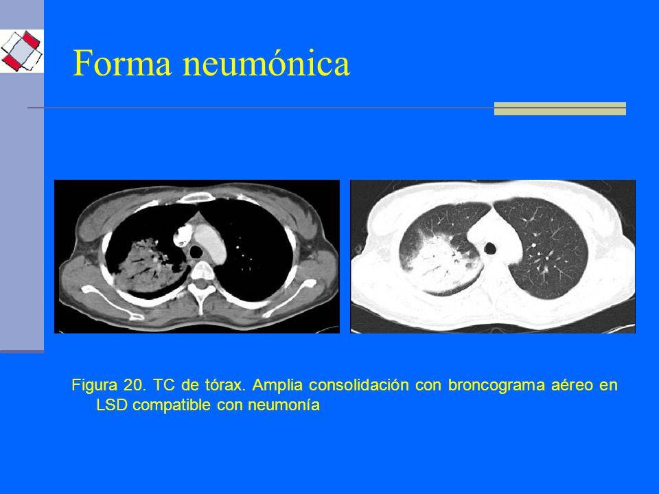 Forma neumónica Figura 20. TC de tórax. Amplia consolidación con broncograma aéreo en LSD compatible con neumonía