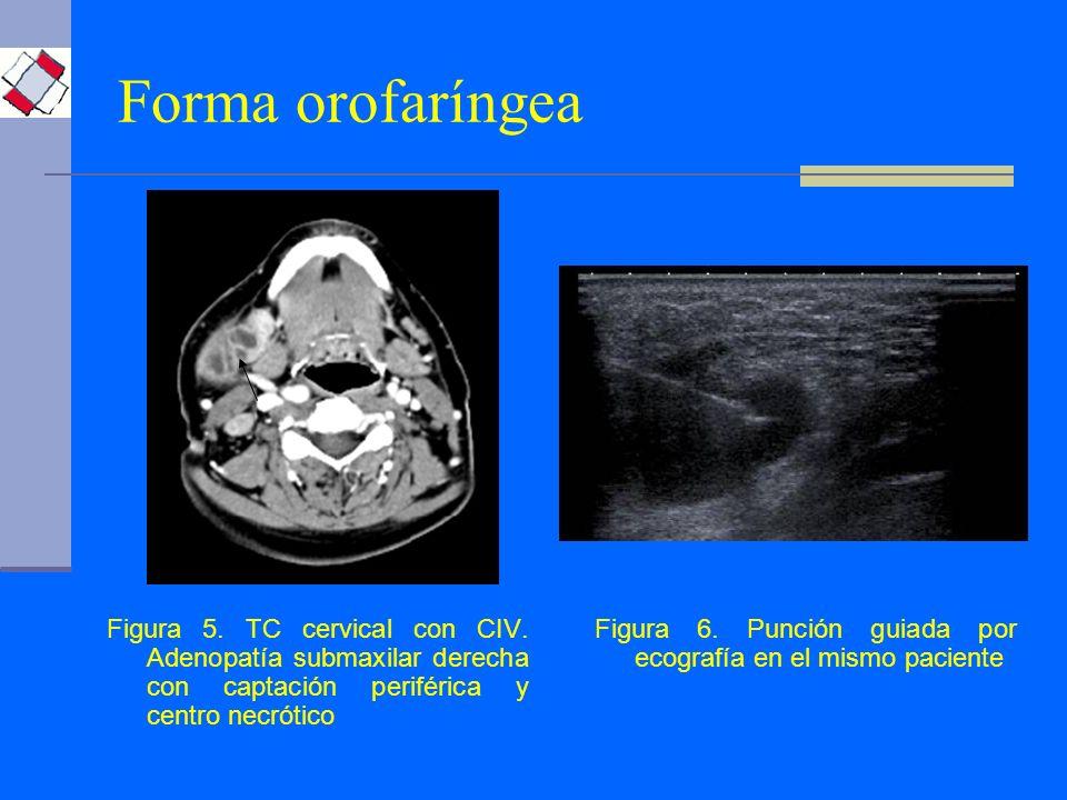 Forma orofaríngea Figura 5. TC cervical con CIV. Adenopatía submaxilar derecha con captación periférica y centro necrótico Figura 6. Punción guiada po