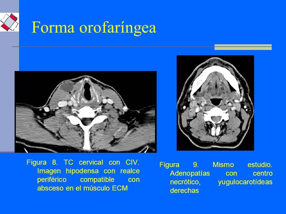 Forma orofaríngea Figura 10.TC cervical con CIV.