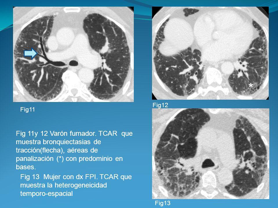 Fig 11y 12 Varón fumador. TCAR que muestra bronquiectasias de tracción(flecha), aéreas de panalización (*) con predominio en bases. Fig 13 Mujer con d