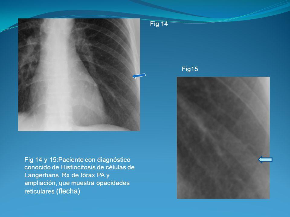 Fig 14 y 15:Paciente con diagnóstico conocido de Histiocitosis de células de Langerhans. Rx de tórax PA y ampliación, que muestra opacidades reticular
