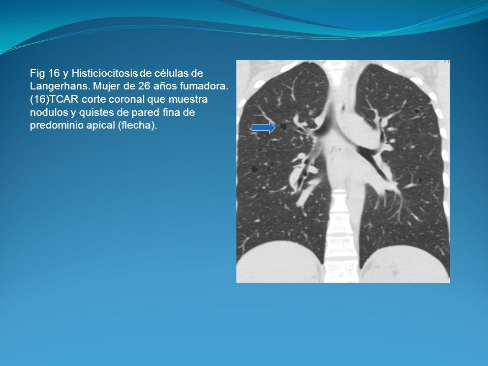 Fig 16 y Histiciocitosis de células de Langerhans. Mujer de 26 años fumadora. (16)TCAR corte coronal que muestra nodulos y quistes de pared fina de pr