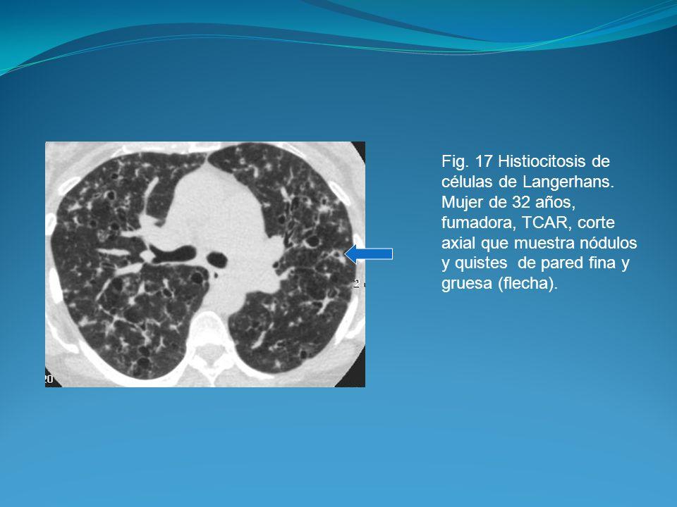 Fig. 17 Histiocitosis de células de Langerhans. Mujer de 32 años, fumadora, TCAR, corte axial que muestra nódulos y quistes de pared fina y gruesa (fl