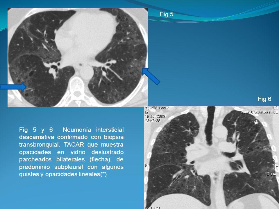 Fig 5 y 6 Neumonía intersticial descamativa confirmado con biopsia transbronquial. TACAR que muestra opacidades en vidrio deslustrado parcheados bilat