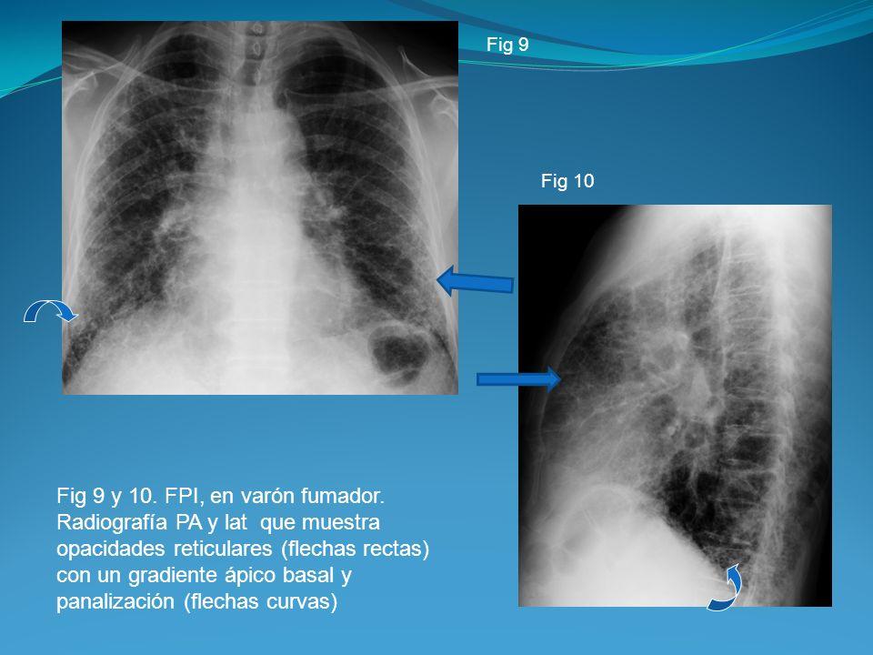 Fig 9 y 10. FPI, en varón fumador. Radiografía PA y lat que muestra opacidades reticulares (flechas rectas) con un gradiente ápico basal y panalizació