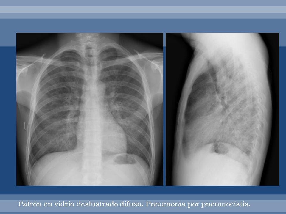 Patrón en vidrio deslustrado difuso. Pneumonía por pneumocistis.