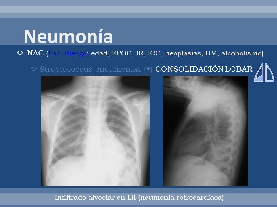 NAC (Fac. Riesgo: edad, EPOC, IR, ICC, neoplasias, DM, alcoholismo) Streptococcus pneumoniae (+) CONSOLIDACIÓN LOBAR Infiltrado alveolar en LII (neumo