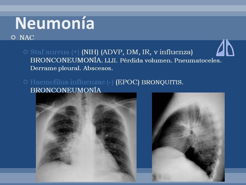 NAC Staf aureus (+) (NIH) (ADVP, DM, IR, v influenza) BRONCONEUMONÍA. LLII. Pérdida volumen. Pneumatoceles. Derrame pleural. Abscesos. Haemofilus infl