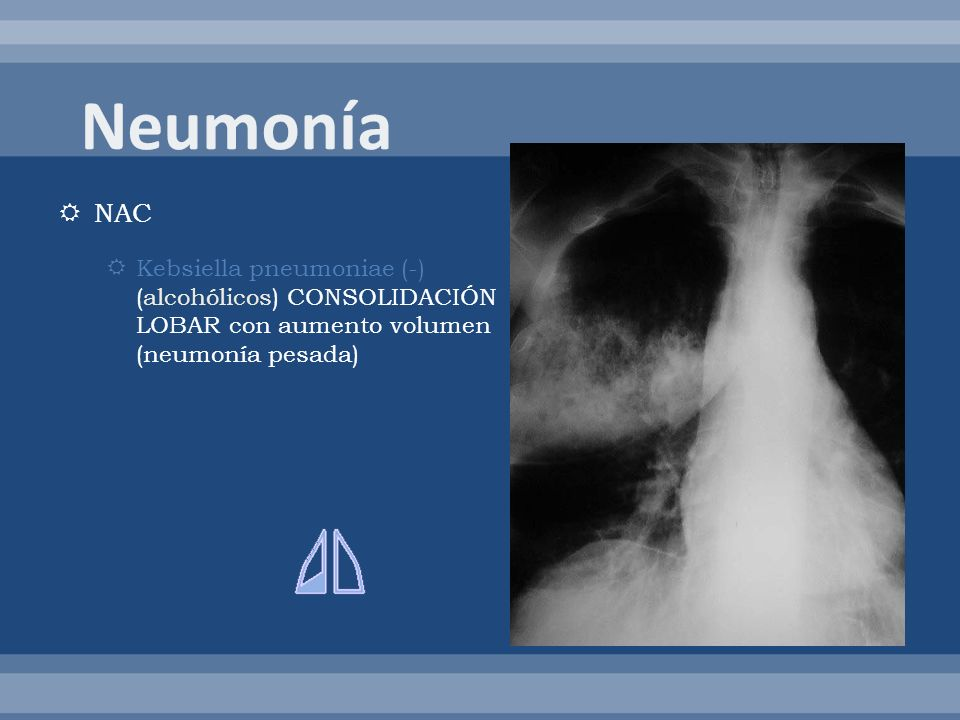 NAC Kebsiella pneumoniae (-) (alcohólicos) CONSOLIDACIÓN LOBAR con aumento volumen (neumonía pesada)