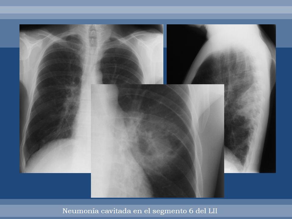 Neumonía cavitada en el segmento 6 del LII