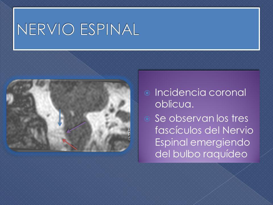 Incidencia coronal oblicua. Se observan los tres fascículos del Nervio Espinal emergiendo del bulbo raquídeo Incidencia coronal oblicua. Se observan l
