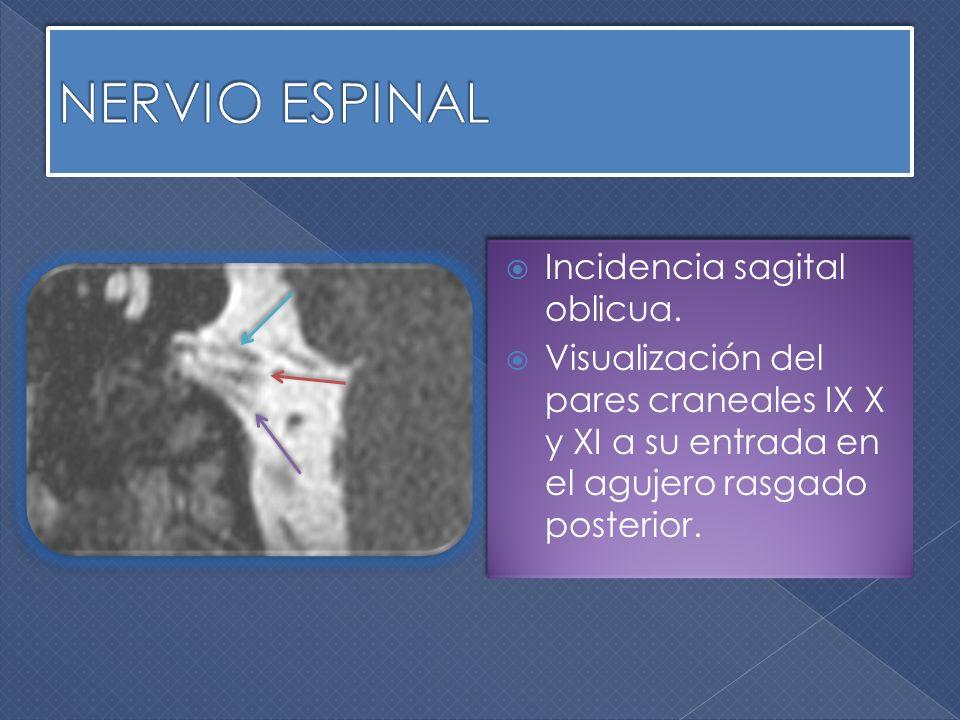 Incidencia sagital oblicua. Visualización del pares craneales IX X y XI a su entrada en el agujero rasgado posterior. Incidencia sagital oblicua. Visu