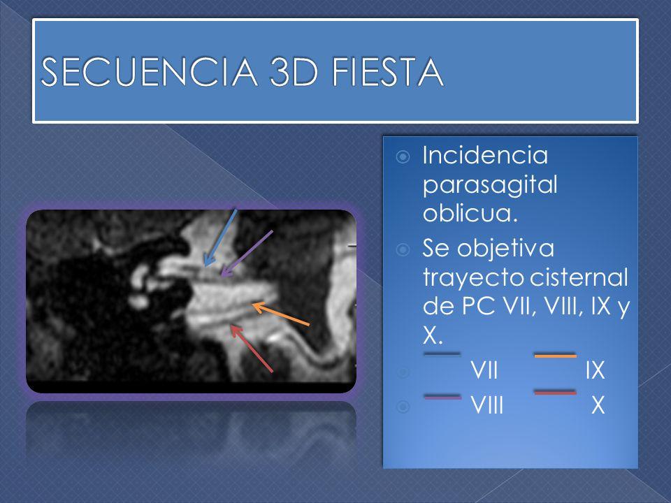 Incidencia parasagital oblicua. Se objetiva trayecto cisternal de PC VII, VIII, IX y X. VII IX Incidencia parasagital oblicua. Se objetiva trayecto ci