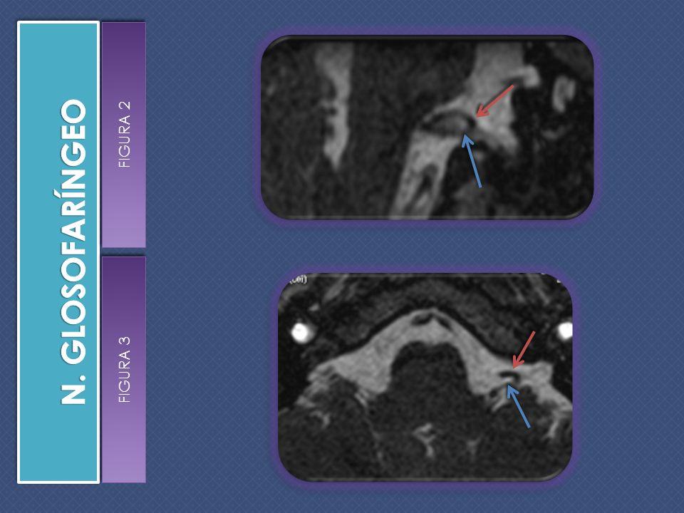 Trayecto del IX PC en la parte inferior de la cisterna pontocerebelosa hacia el foramen oval.