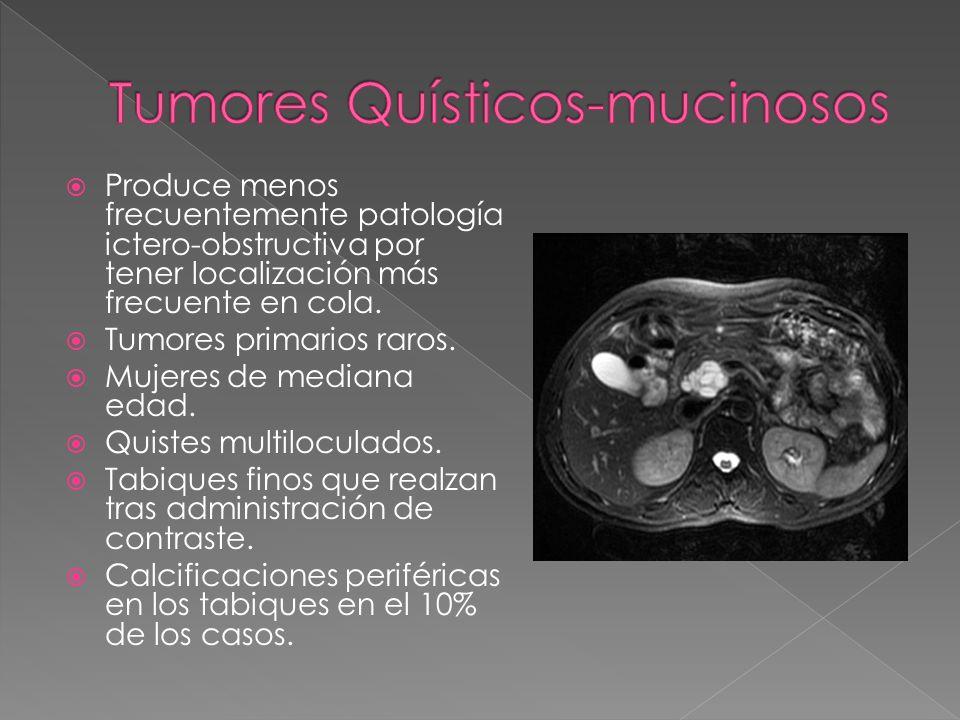 Produce menos frecuentemente patología ictero-obstructiva por tener localización más frecuente en cola. Tumores primarios raros. Mujeres de mediana ed