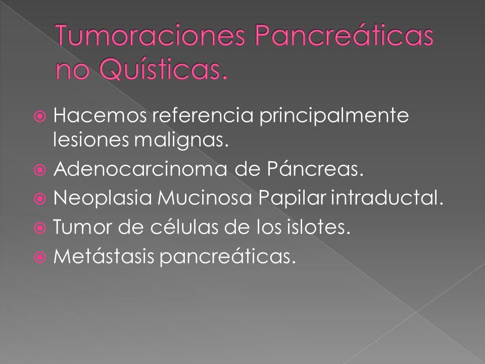 Hacemos referencia principalmente lesiones malignas. Adenocarcinoma de Páncreas. Neoplasia Mucinosa Papilar intraductal. Tumor de células de los islot