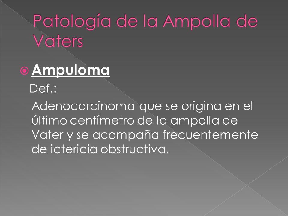 Ampuloma Def.: Adenocarcinoma que se origina en el último centímetro de la ampolla de Vater y se acompaña frecuentemente de ictericia obstructiva.