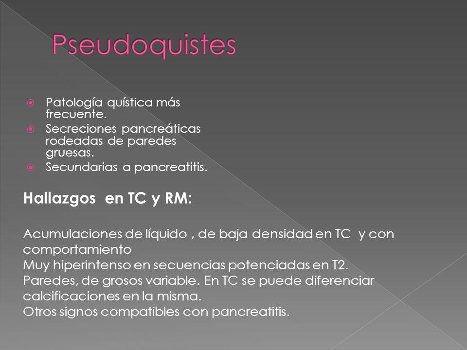 Patología quística más frecuente. Secreciones pancreáticas rodeadas de paredes gruesas. Secundarias a pancreatitis. Hallazgos en TC y RM: Acumulacione