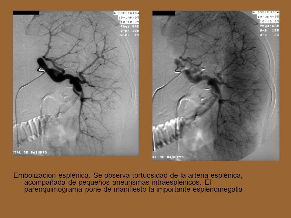 Embolización esplénica. Se observa tortuosidad de la arteria esplénica, acompañada de pequeños aneurismas intraesplénicos. El parenquimograma pone de