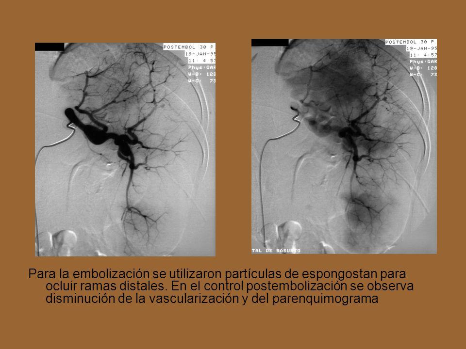 Para la embolización se utilizaron partículas de espongostan para ocluir ramas distales. En el control postembolización se observa disminución de la v