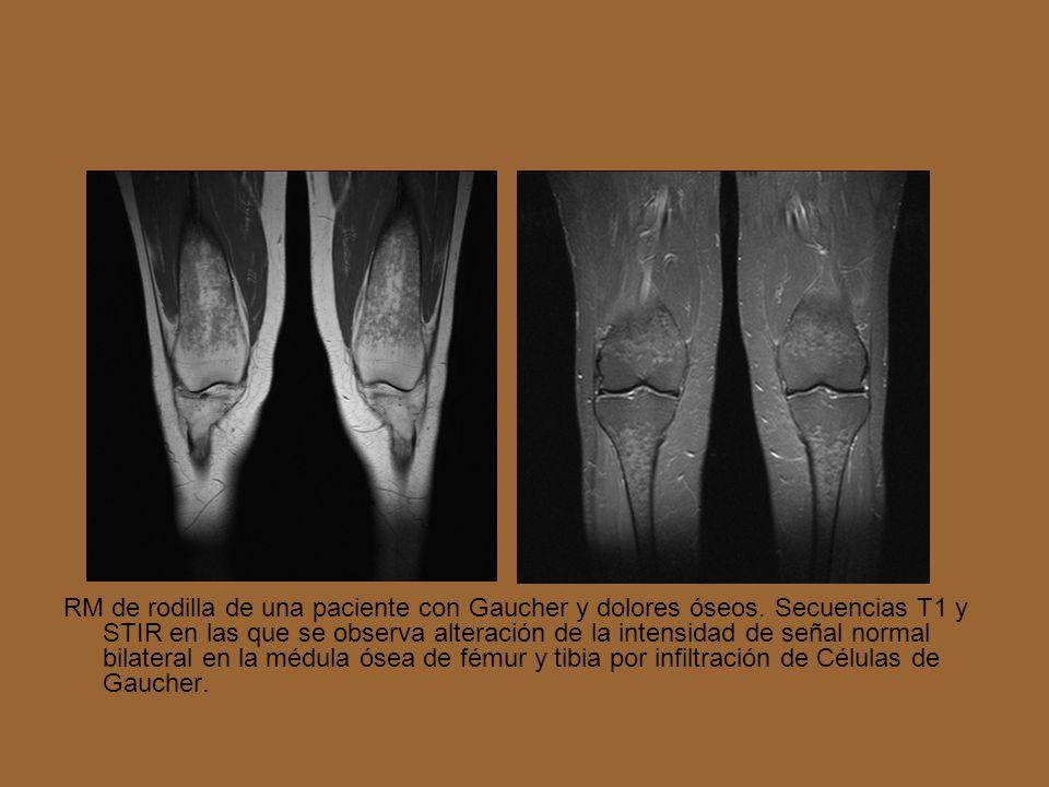 RM de rodilla de una paciente con Gaucher y dolores óseos. Secuencias T1 y STIR en las que se observa alteración de la intensidad de señal normal bila